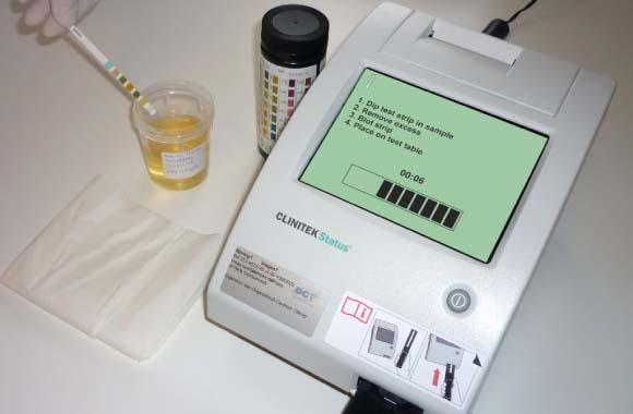 urinestriplezer